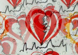 Wie läuft eine Herzratenvariabilitätsmessung ab?
